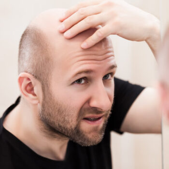 wat te doen tegen kaalheid